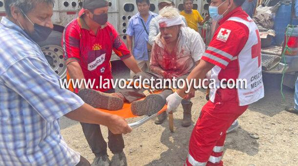 Hombre resulta herido tras caer de un árbol   LVDT
